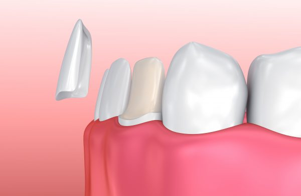 Dental Veneers: Porcelain Veneer installation Procedure.