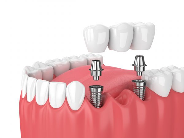Perth Dental Rooms Teeth Repair